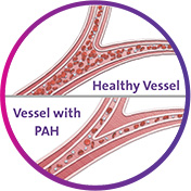 Healthy Blood Vessel vs. Blood Vessel with PAH
